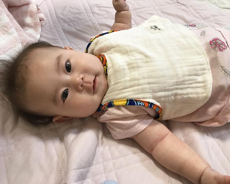 赤ちゃんスタイ